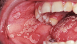 Oral Thrush example about dental emergencies for seniors in Lincoln, NE
