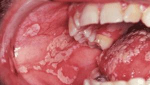 image of Oral Thrush requiring dental care for seniors in Lincoln, NE