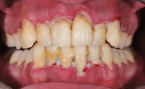 Tooth Decay and gum disease showing the importance for dental care for seniors in Lincoln, NE