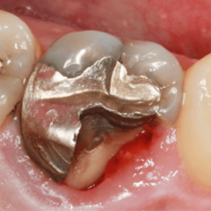 broken filling about dental care for geriatric patients in Lincoln, NE