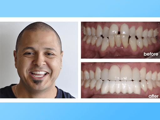 dental veneers patient before and after