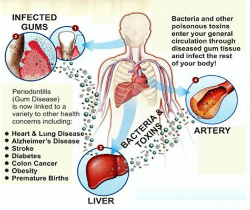 diagram discussing infected gums and the body as a whole regarding oral hygiene dental care for seniors