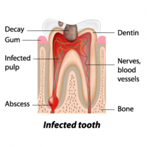 infected tooth illustration about dental care for geriatric patients in Lincoln, NE