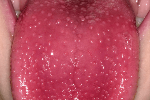 dental care for seniors in Lincoln, NE is important as this image shows painful red tongue