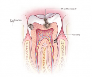 tooth decay illustration for oral hygiene in the elderly in Lincoln, NE