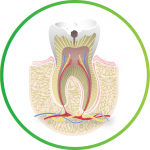 Image of tooth pain that has been linked to a cavity.