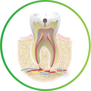 Image of a cavity from Nebraska Family Dentistry.