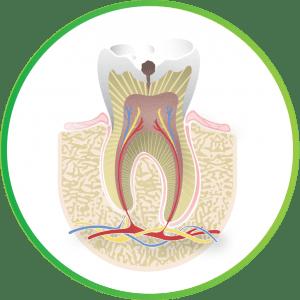 Image of a cavity from Nebraska Family Dentistry.