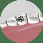 dental filling option