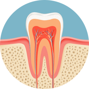 root canal inside on root canal vs extraction