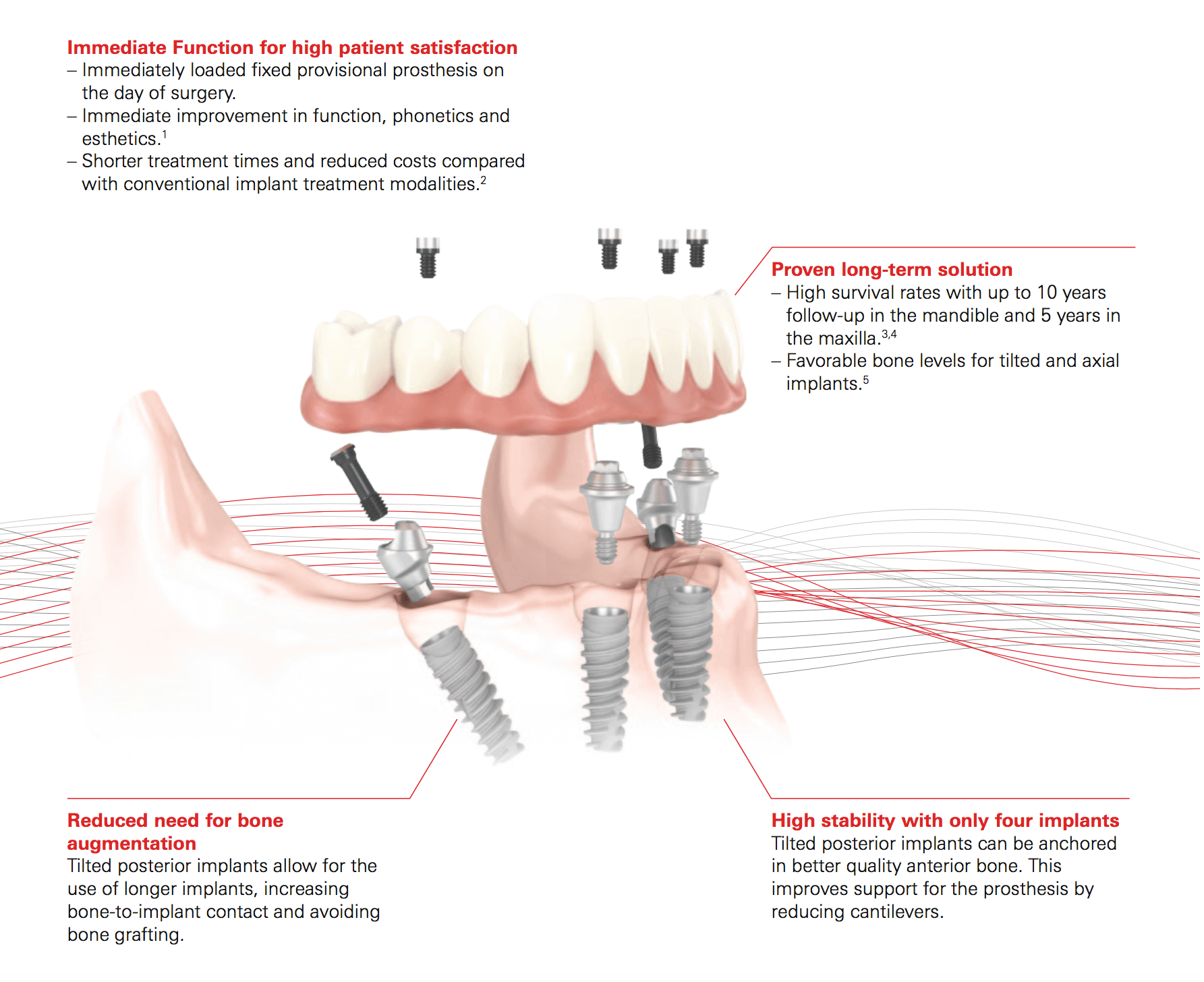 Hybrid Prostesis of implant dentures