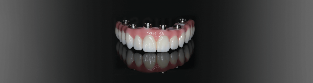 implant dentures model lincoln ne