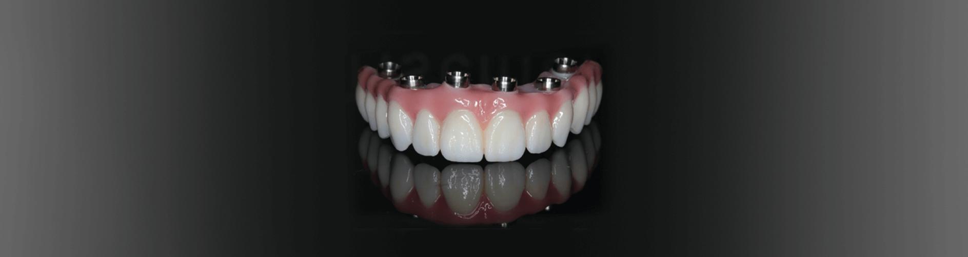 implant dentures model lincoln ne