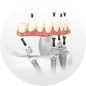 implant denture example