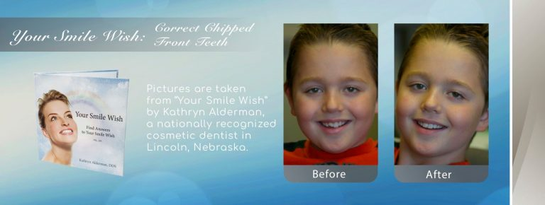 NFD's image of corrected chipped front teeth fixed by searching for smile makeover near me