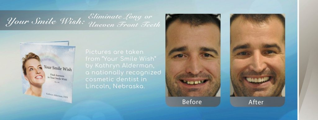 NFD eliminate long uneven front teeth by Lincoln Cosmetic Dentist