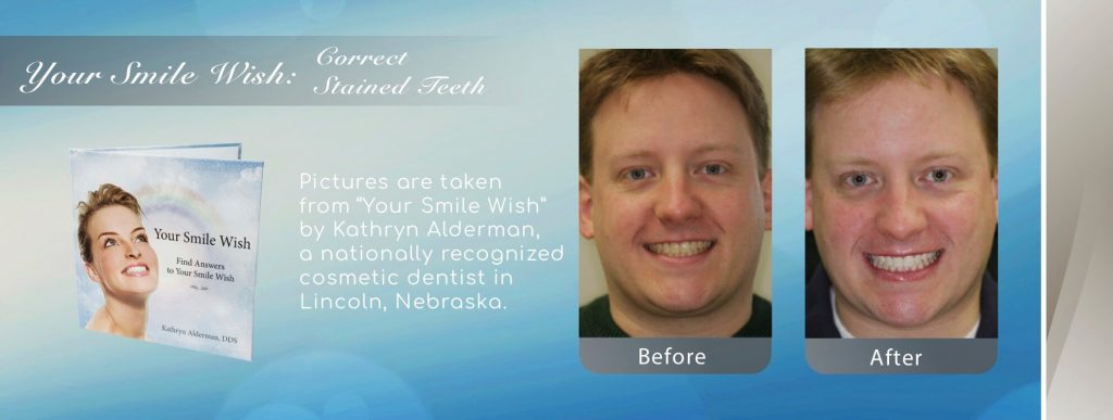 NFD's image of replaced and correct stained teeth by Cosmetic Smile Makeover