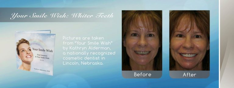 whiter teeth from a Cosmetic Smile Makeover by dentist Near Me Lincoln, NE