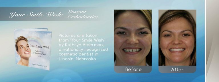 NFD's image of Instant Orthodontics by cosmetic smile makeover near me in Lincoln, NE