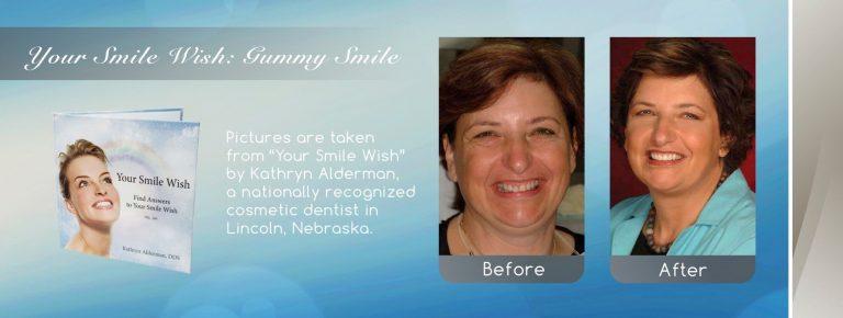 gummy smile fix cosmetic smile makeover near me in Lincoln, NE