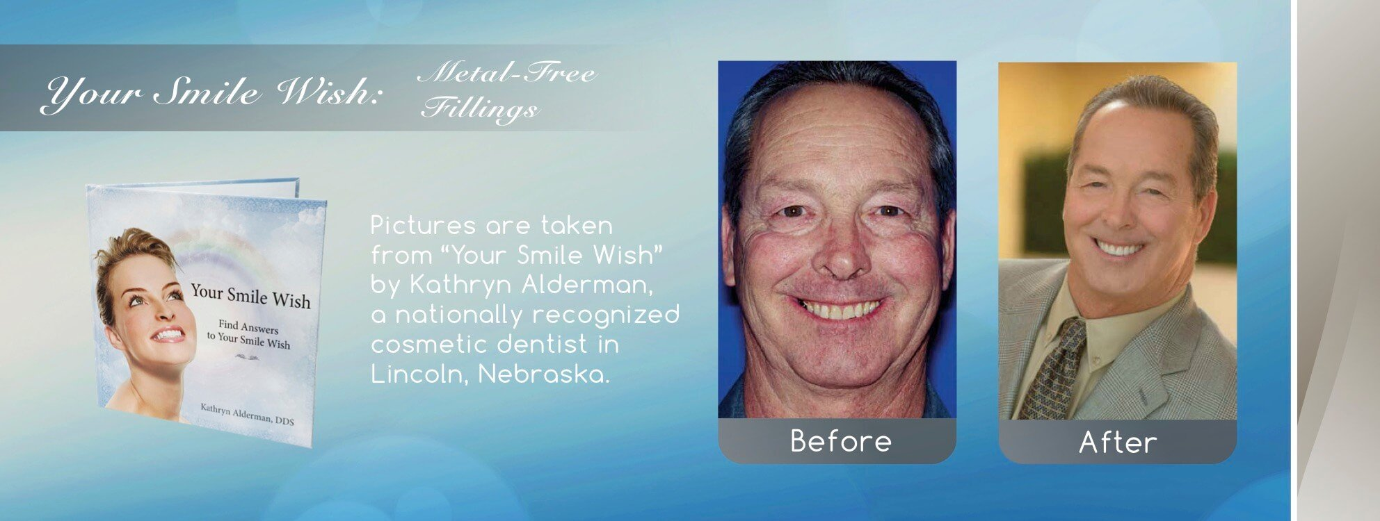 NFD's metal free fillings by Cosmetic Smile Makeover near me in Lincoln, NE