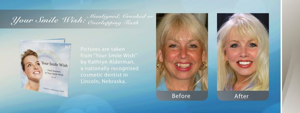 South Pointe Dental's image ofl misaligned crooked coverlapping teeth fixed by Cosmetic Smile Makeover