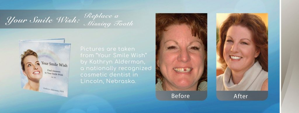 NFD's image of a replaced missing tooth by Your by Cosmetic Smile Makeover Dentist