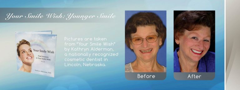 Image from NFD showing a younger smile created by Your Cosmetic Smile Makeover near me in Lincoln, NE
