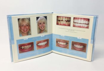 you smile wish veneers crowns pres dr kathryn