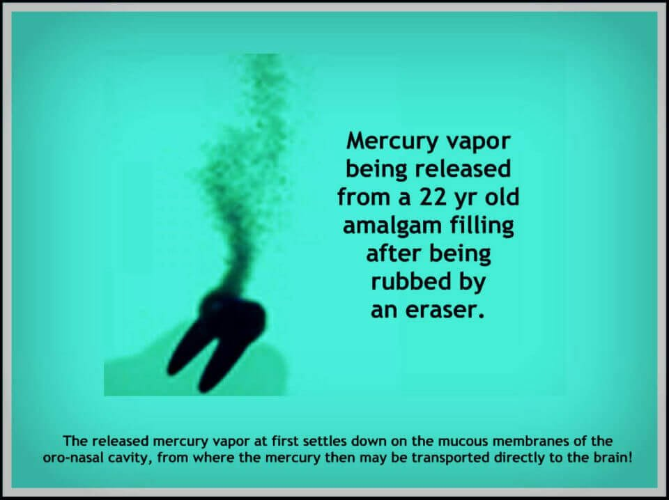 image from Biological dentist in Lincoln, NE showing mercury vapor being released from a tooth after being rubbed by an eraser.