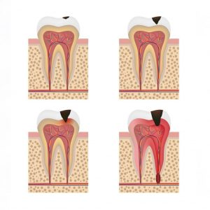 root canal progression