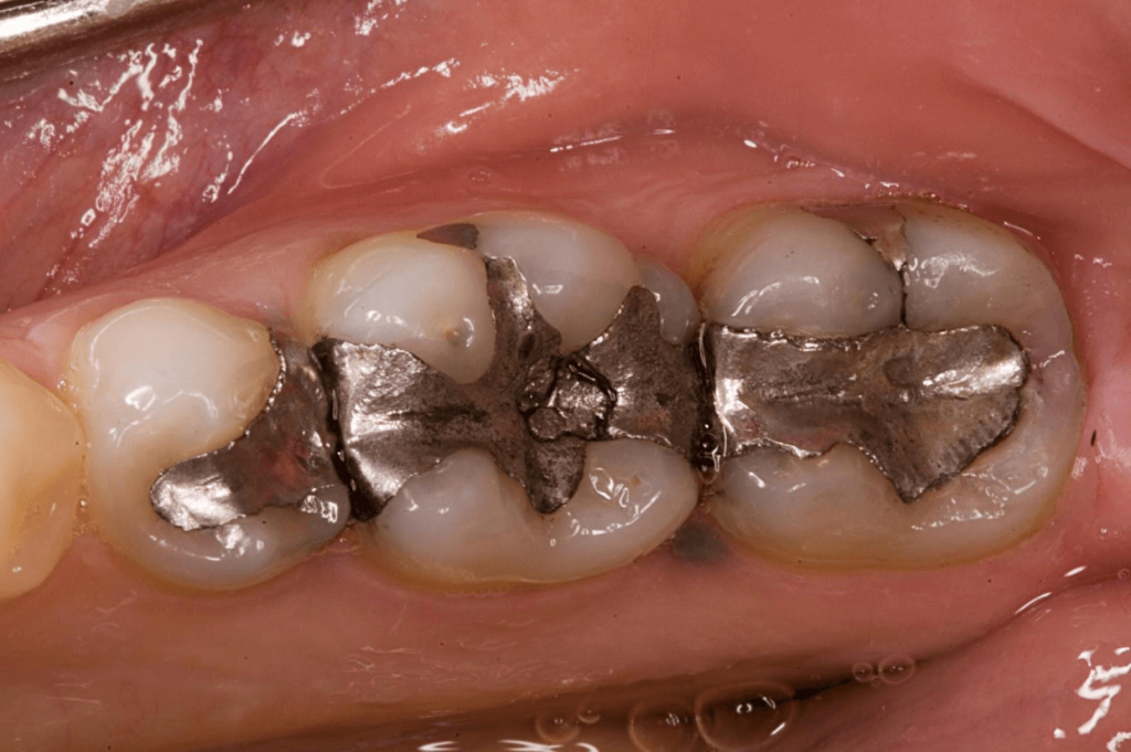 A before image from Nebraska Family Dentistry of Silver/ Mercury fillings before being replaced with tooth colored fillings