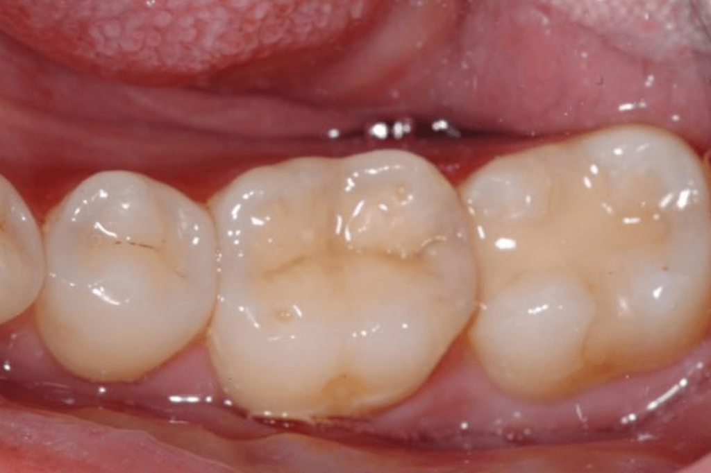 Example of tooth-colored, white fillings from your biological dentist in Lincoln, NE at Nebraska Family Dentistry