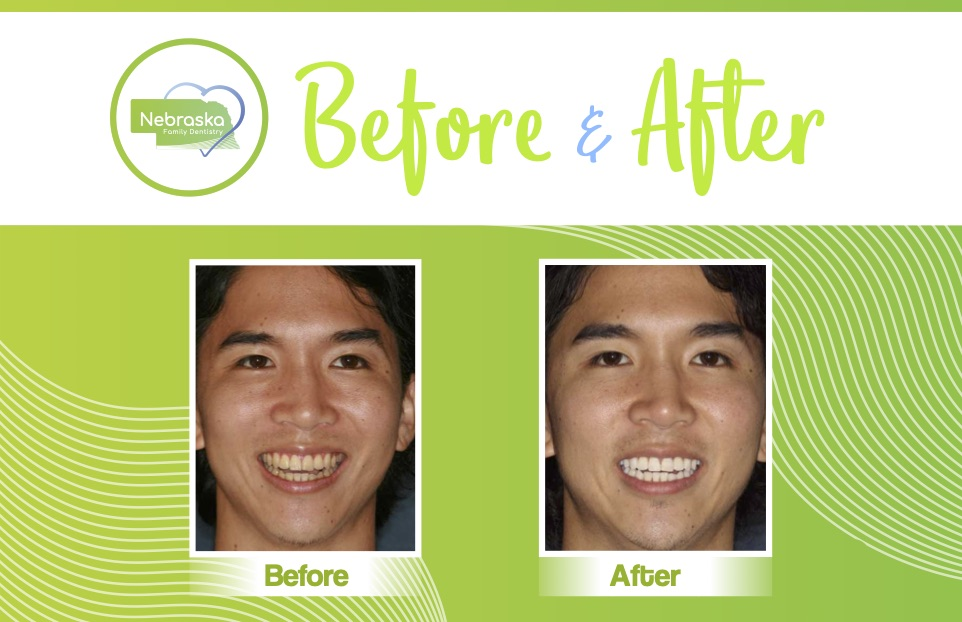 Before and after image of a happy patient from Nebraska Family Dentistry with whiter teeth.
