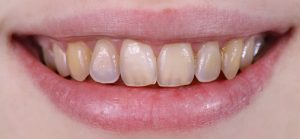 Image of a smile with stained teeth.