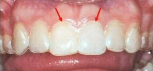 Whitening tray over teeth with seal along gum line (indicated by the arrows) for the best whitening system.