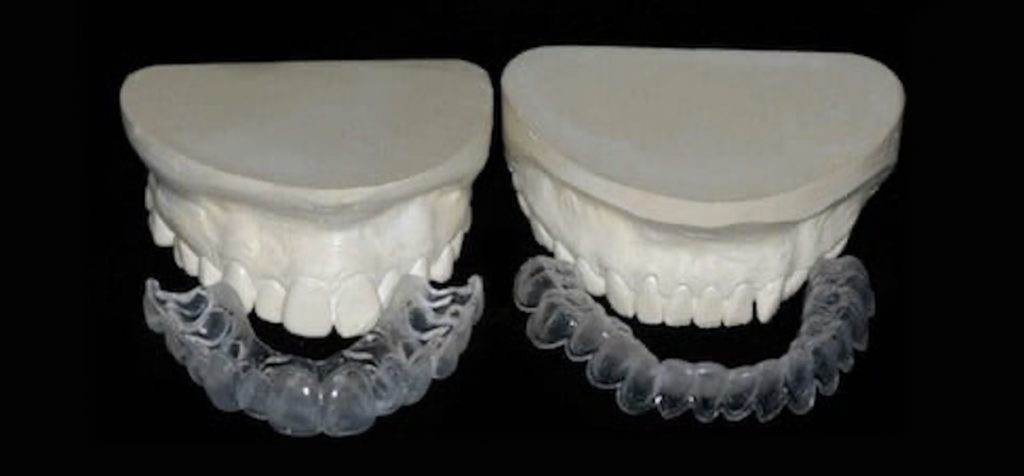 custom whitening trays