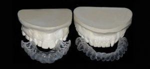 Image of plaster models of teeth that are used when making trays for a whiter smile.