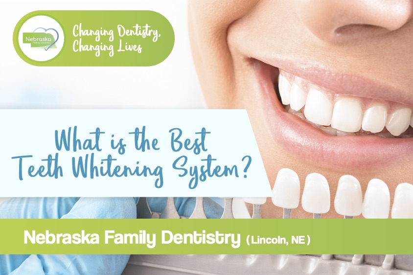 what-is-the-best-teeth-whitening-system-post
