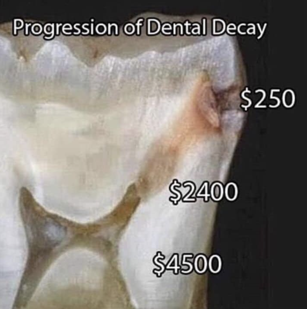 progress of tooth decay
