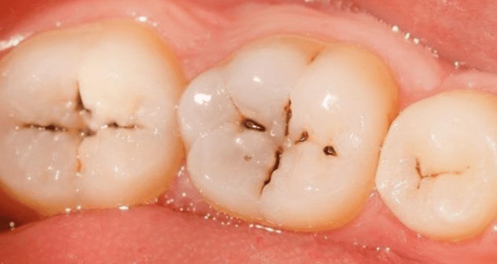 teeth with cavities nfd.