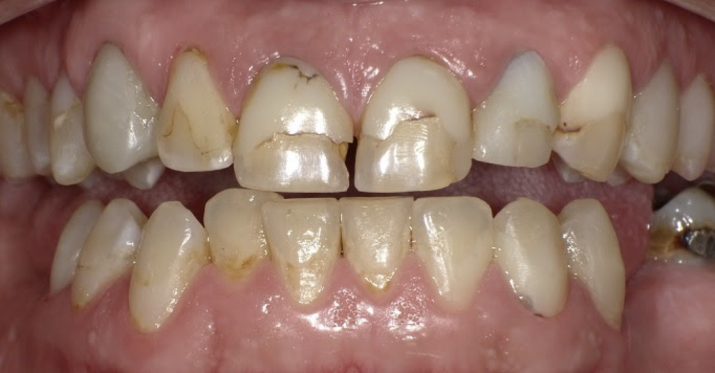 teeth with old composite