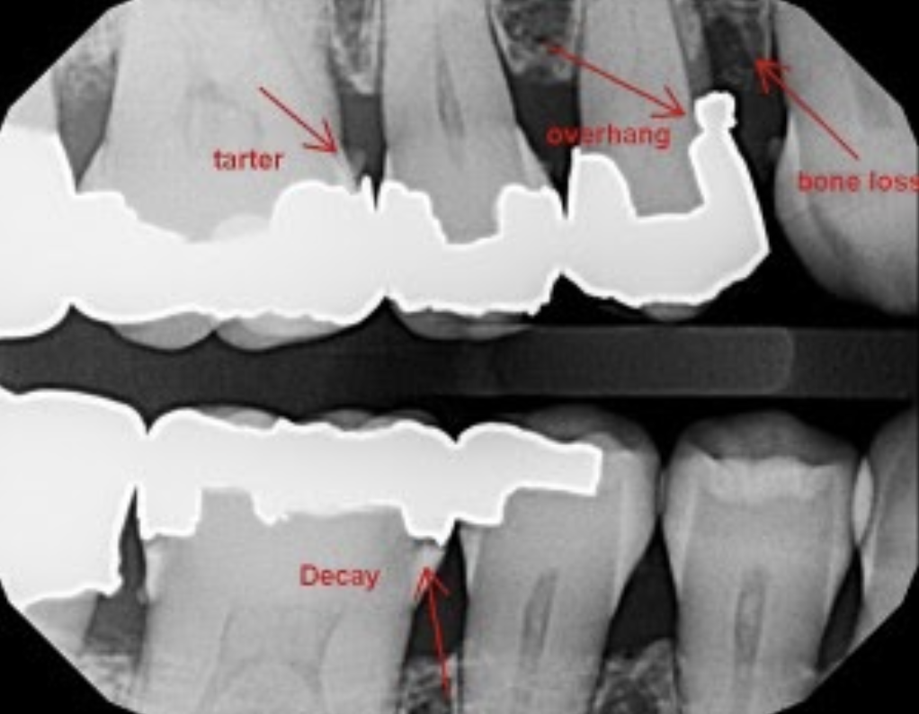 xray of teeth with many cavities