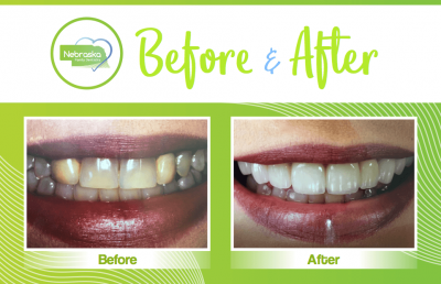 Veneers before and after for whiter teeth